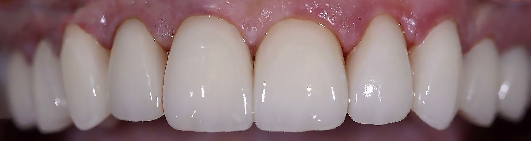 dental restoration case after